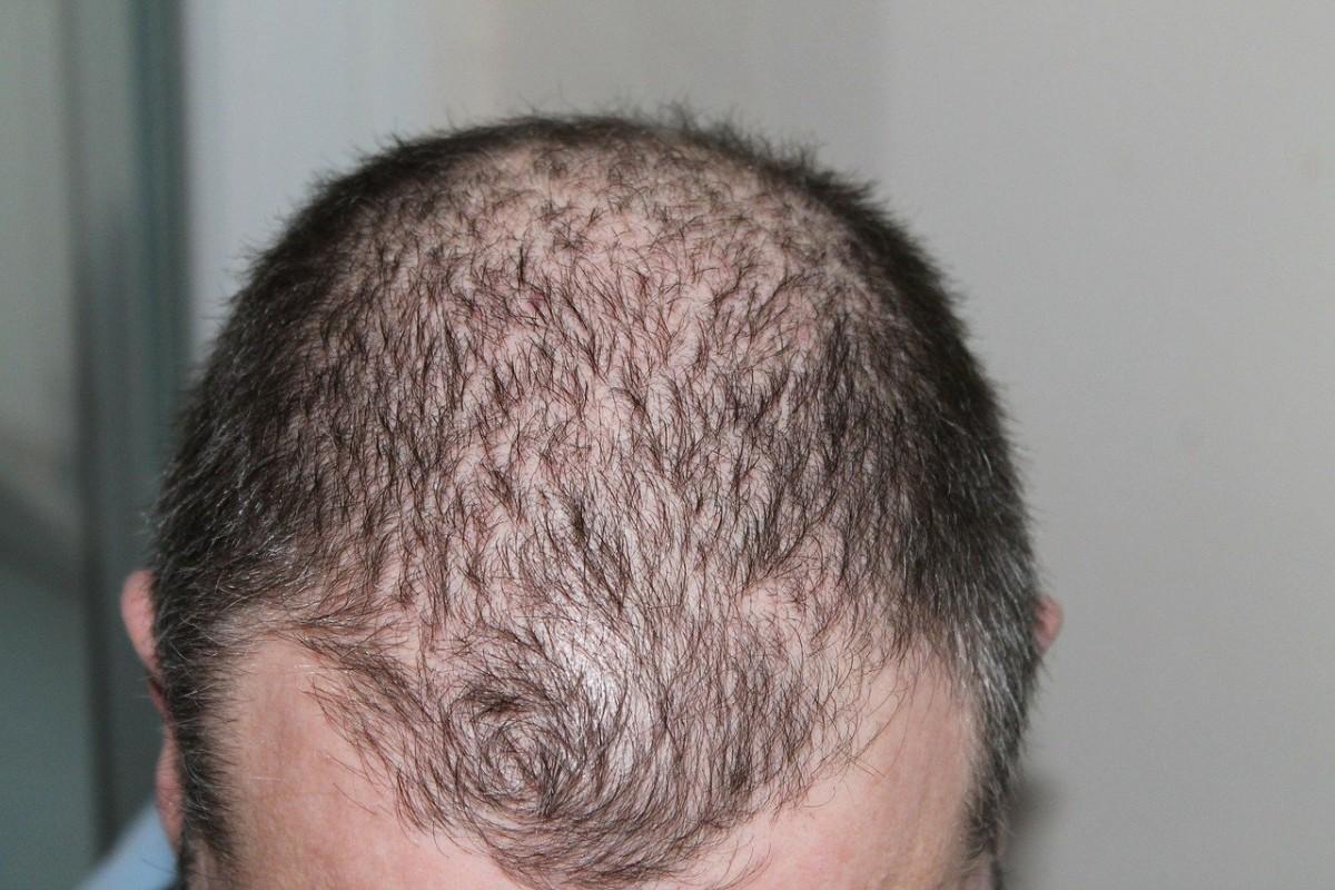 Koronavirüs hastalarında saç dökülmesi sorunu