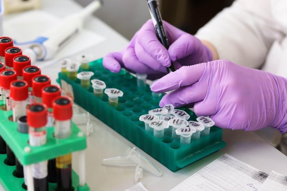 Türkiye'ye girişlerinde PCR testi istenmeyecek ülkeler belli oldu